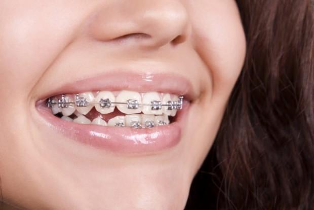pasang behel di klinik gigi bekasi JB-DENTAL