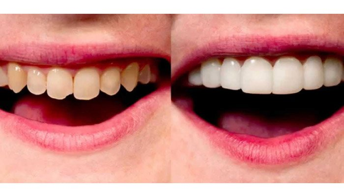 pasang veneer porselen di dokter gigi spesialis konservasi